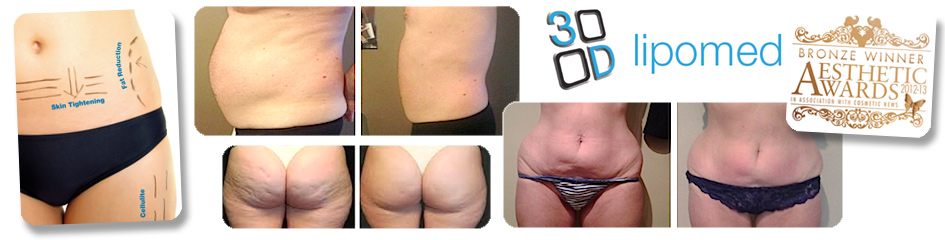 3D Lipomed Fat and Cellulite Reduction