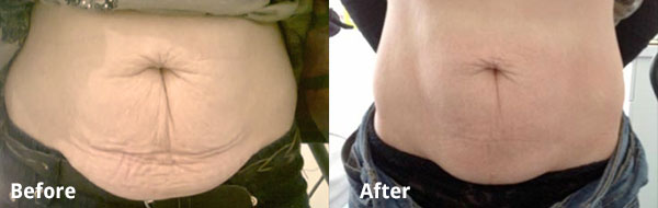 3D Lipo before and after photo