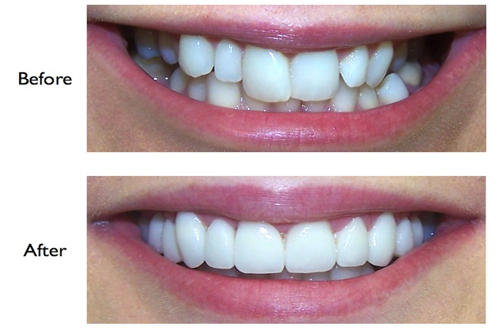 Pictures of a smile enhancement using veneers carried out at our Finchley Road, NW3 Dental Practice