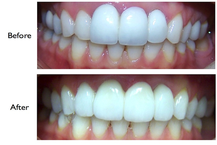 Pictures of a smile enhancement by porcelain bridge done at our Finchley Road, NW3 dental practice