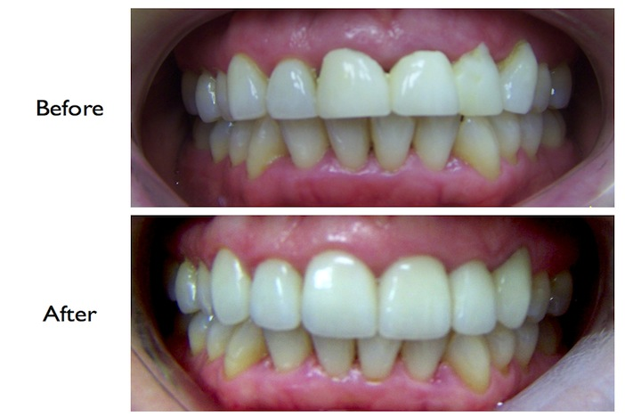 Pictures of a smile enhancement by crowns and veneers done at our Finchley Road, NW3 dental practice