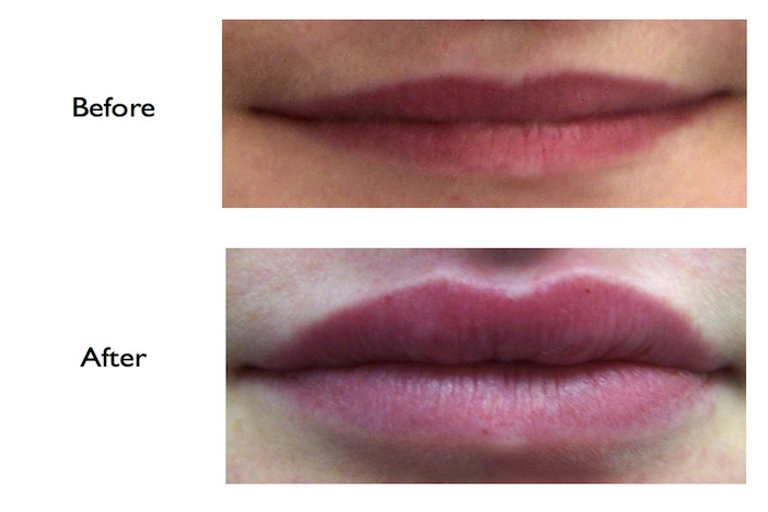 Lip Enhancement using Juvederm (dermal filler) done at our NW3, Finchley Road, dental practice