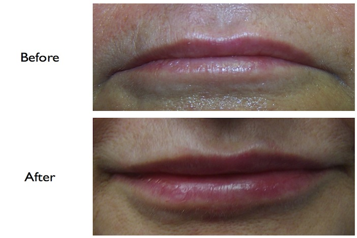 Lip Enhancement using Juvederm (dermal filler) done at our NW3, Finchley Road, dental clinic