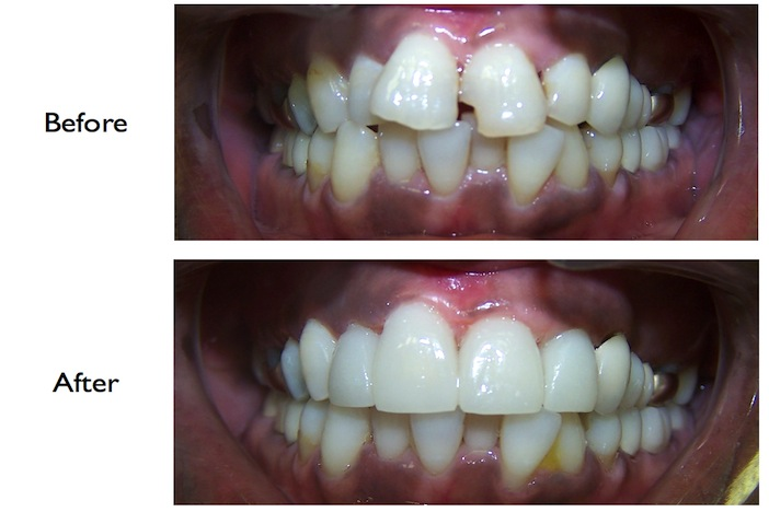 Full mouth reconstruction using crowns & veneers done at our NW3, Finchley Road dental clinic
