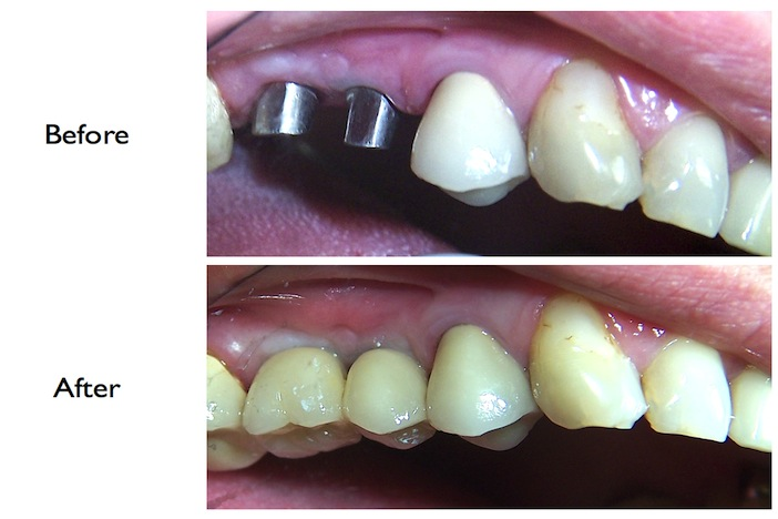 Pictures of a pre-molar & molar implant done at our NW3, Finchley Road dental clinic