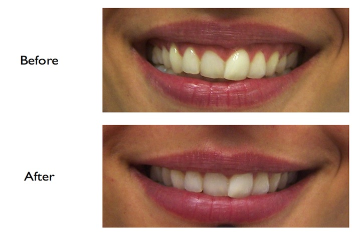Pictures of a gummy smile correction using Botox performed at our Finchley Road, NW3 Dental Practice