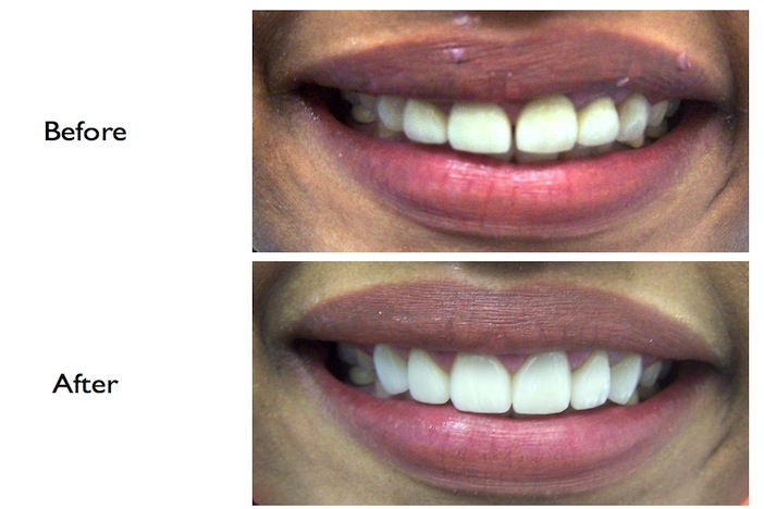 Smile enhancement by gum conturing, veneers & crowns performed at our Finchley Rd NW3 Dental Clinic