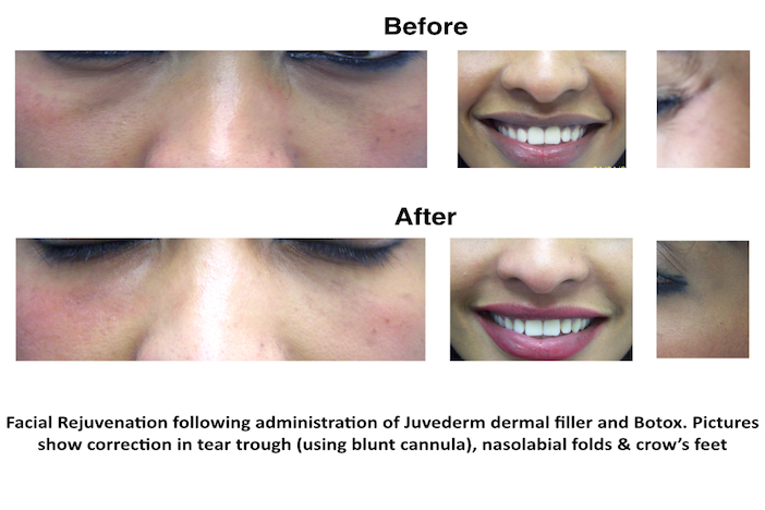 Facial Rejuvenation with dermal filler and Botox at our Finchley Road, NW3 dental clinic