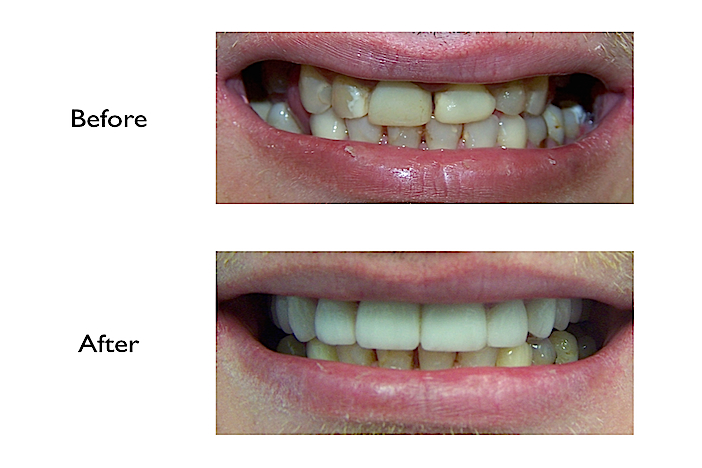 Reconstruction of upper teeth with crowns & bridges performed at our Finchley Road NW3 Dental Clinic