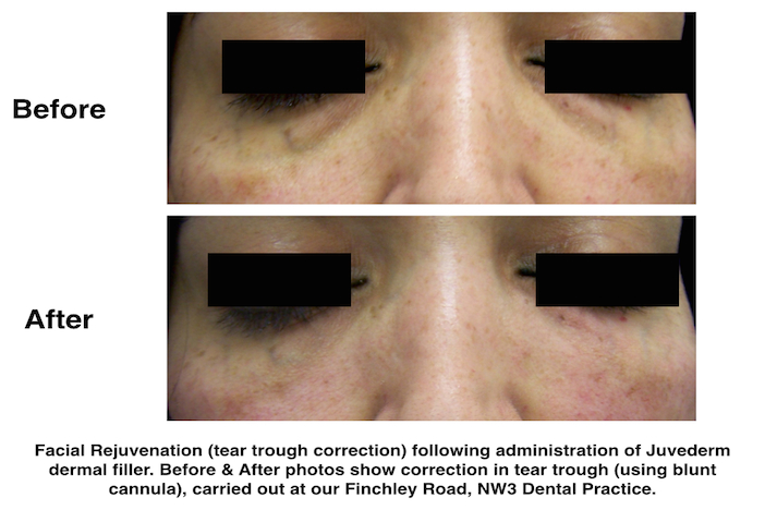 Tear trough correction with dermal filler at our Finchley Road, NW3 dental clinic