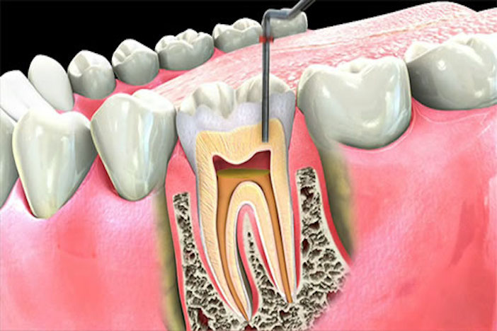Benefits of Root Canal Treatment Over Tooth Extraction