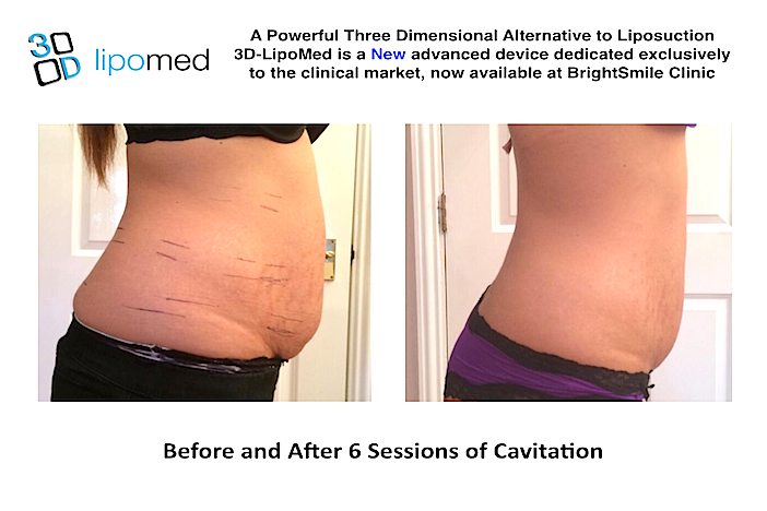 cavitation_offer