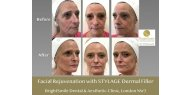 Facial Rejuvenation with STYLAGE Dermal Filler, available at BrightSmile Dental & Aesthetic Clinic NW3