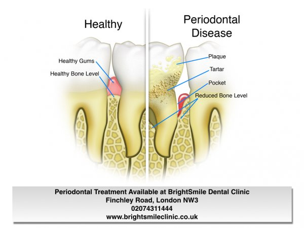 gum disease blog 11nov2015b