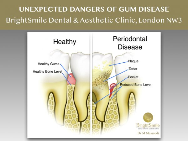 gum disease March 2019