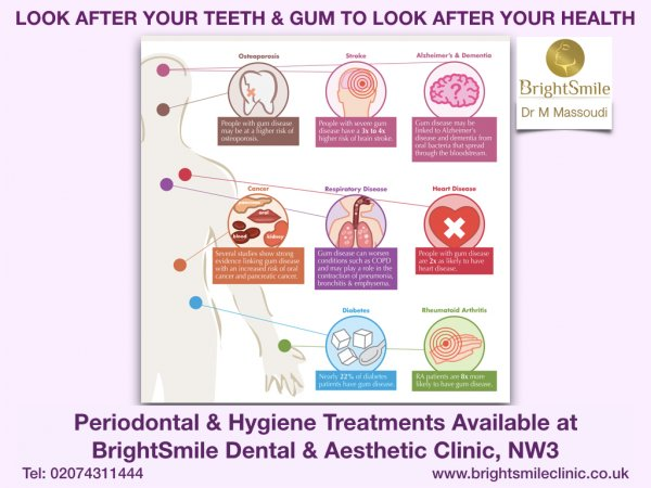 gum health april2018