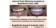 Internal Whitening Of Non-vital Teeth Available At BrightSmile Dental & Aesthetic Clinic NW3
