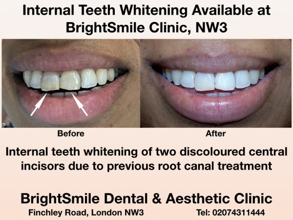 internal whitening_dec2017