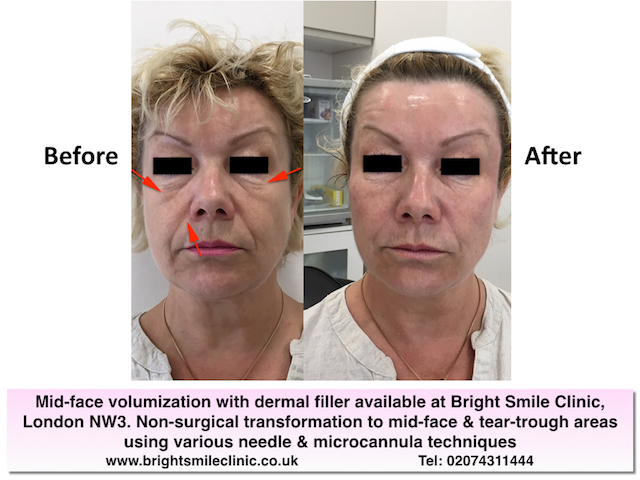 Mid-face volumization with dermal filler available at Bright Smile Clinic, London NW3