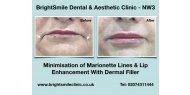 Minimisation of Marionette Lines & Lip Enhancement With Dermal Filler available at BrightSmile Clinic - NW3