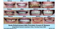 Smile Enhancement With Porcelain Crowns & Veneers Available at BrightSmile Dental & Aesthetic Clinic NW3