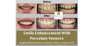 Smile Enhancement With Porcelain Veneers Available at BrightSmile Dental & Aesthetic Clinic NW3