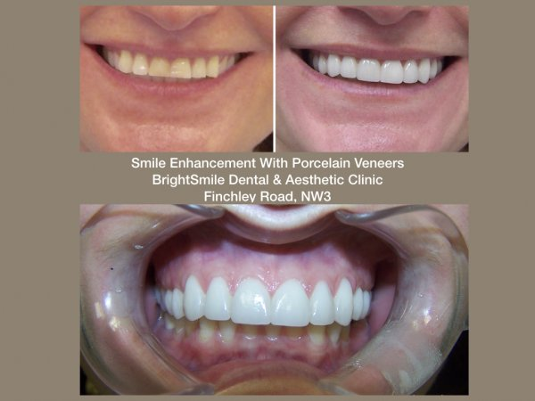 smile enhancement_24oct2017