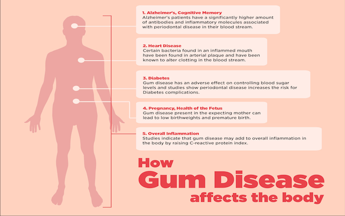 Taking care of your gums by regular dental visits could help hold heart disease at bay