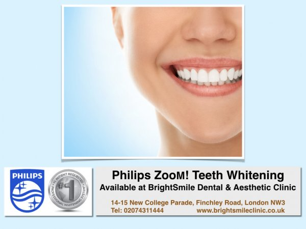 teeth whitening_Feb2018