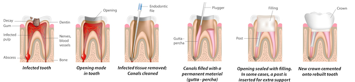 What is a Root Canal? What is Endodontics?